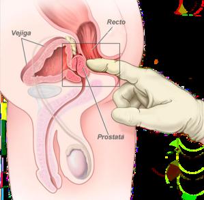 masaje erótico de próstata recto